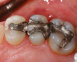 Izvadite amalgamske plombe, jer uzrokuju maligna oboljenja