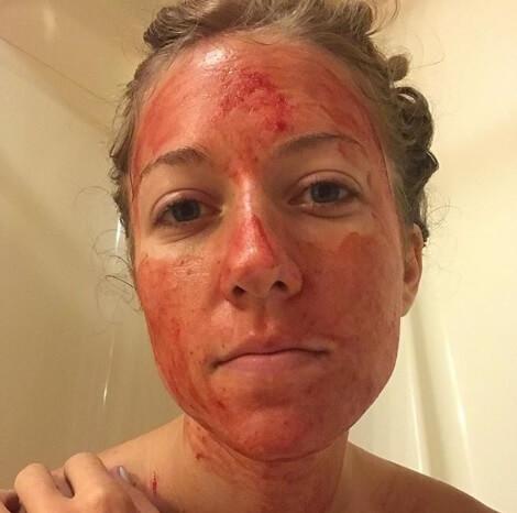 Djevojka premazuje lice mengom i fotka se za Instagram, a tim činom želi poslati važnu poruku