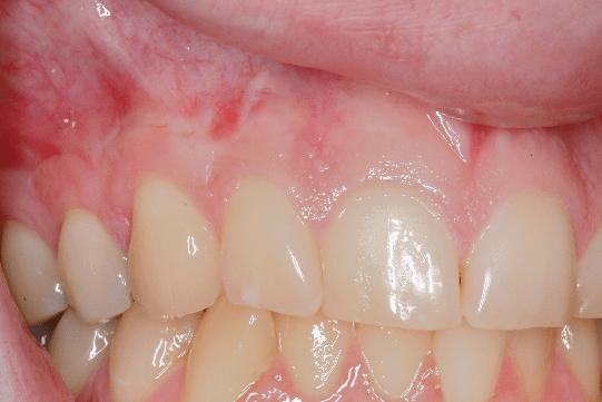 Gum Receding Sensitivity And Gum