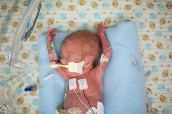 Parker Scott, born at 22 weeks gestation