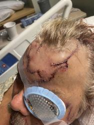 COURTESY ALLEN MINISH VIA AP                                 Lacerations on Allen Minish's head as he recuperates at a hospital in Anchorage, Alaska, following a mauling by a brown bear.