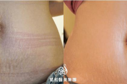 妊娠紋消除