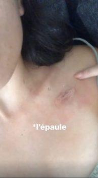 Agathe Auproux dévoile l'impressionnante cicatrice de son cathéter