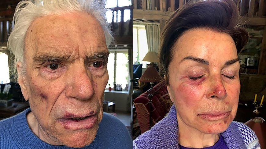 Les visages de Bernard et Dominique Tapie après leur violente agression © AFP - Family Handout