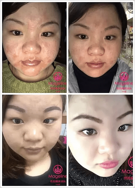 Testimonial for Mageline 3 steps skin care products