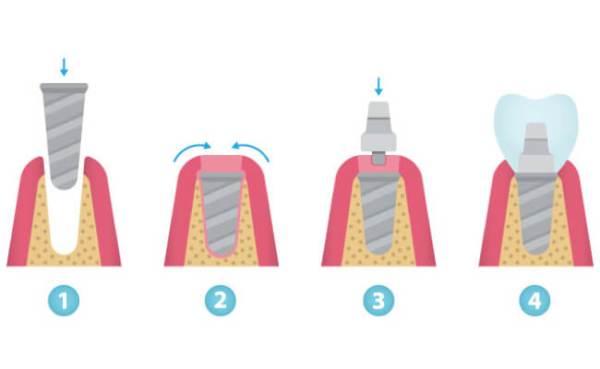 Коронка на имплант – какую лучше поставить?