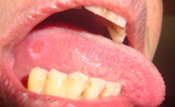 Глоссит – фото, симптомы, лечение