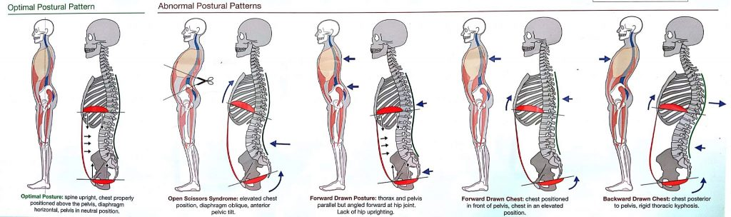 Severe lower back pain early pregnancy