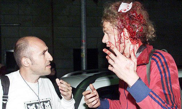 Soggetto vittime di violenza nella Diazl (fonte image: italia.panorama)