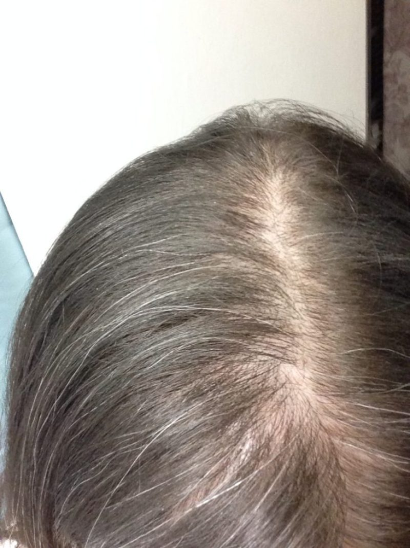 This was my hair in 2014 prior to my diagnosis with an autoimmune disease. I can see the hair loss pattern now, but at the time I didn't know what to look for!