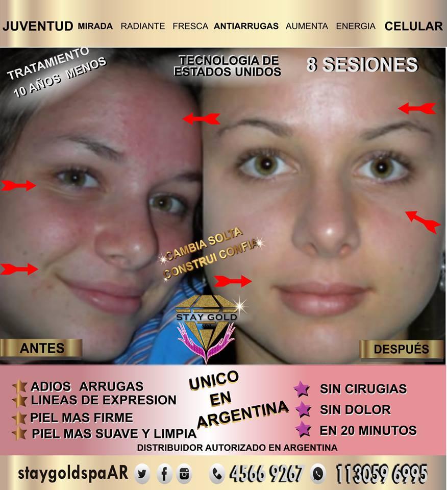 Limpieza Facial y Anti Acné