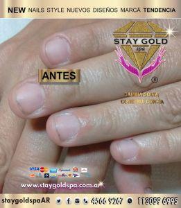 Onicofagia. Tratamiento de uñas mordidas