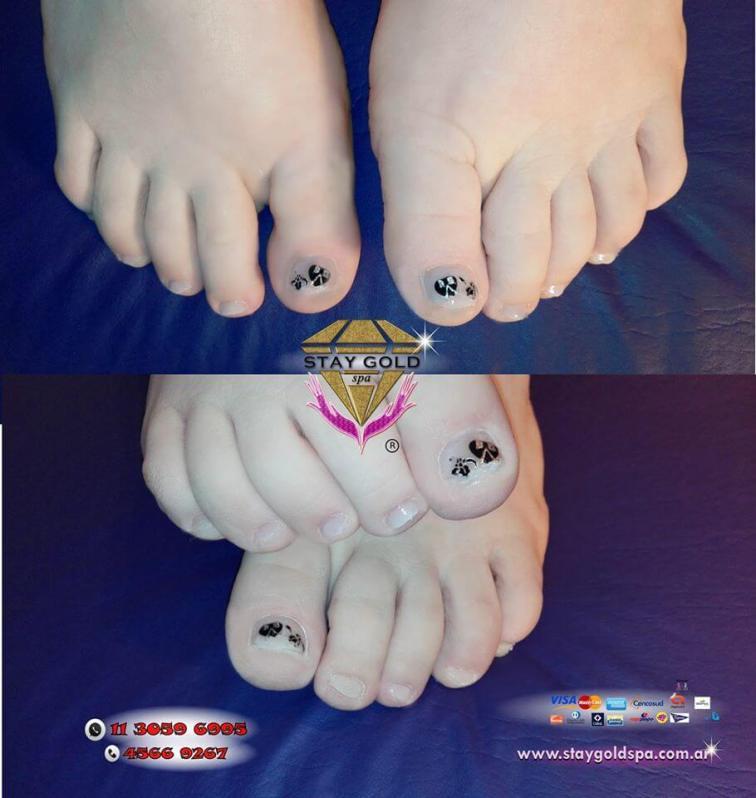 precio belleza de pies