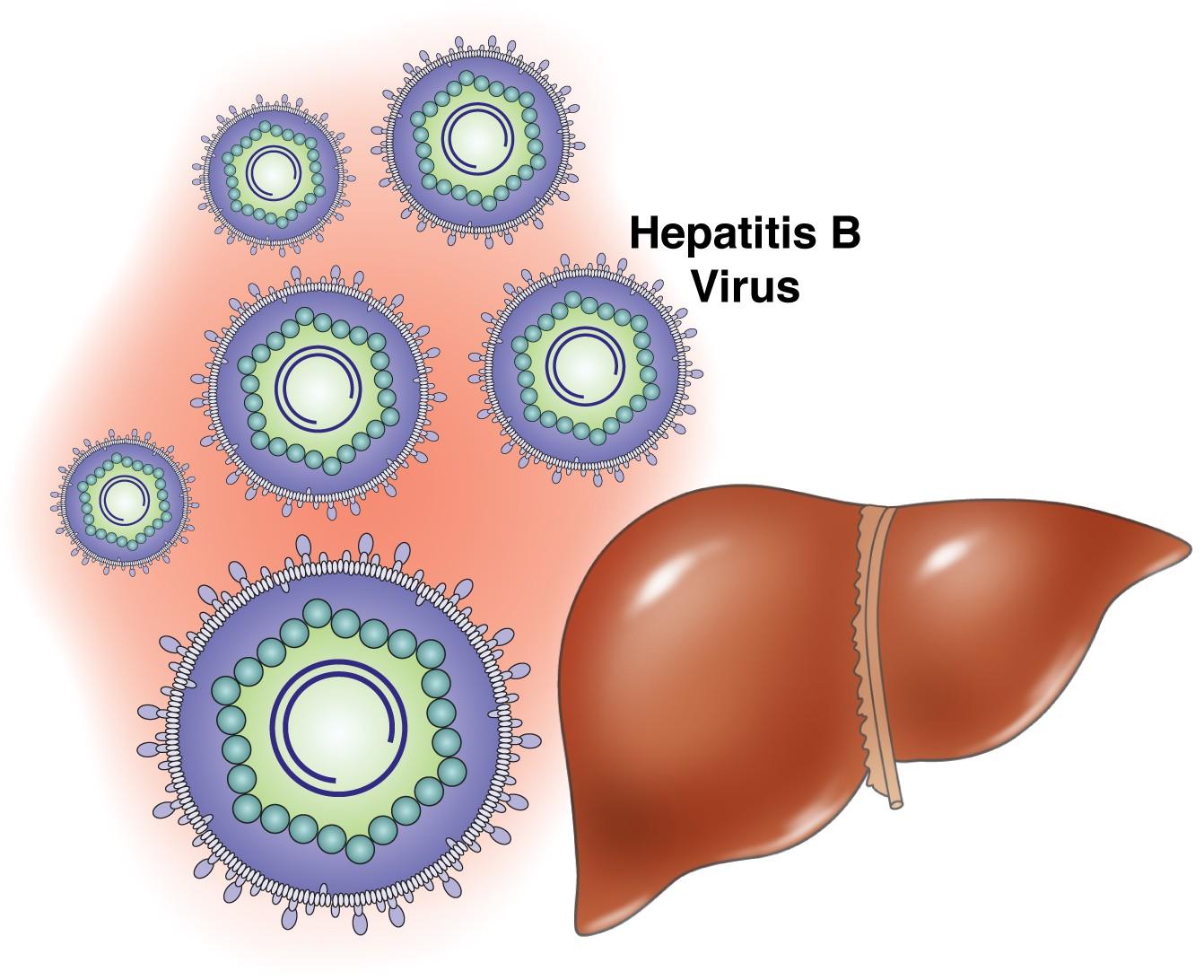 Hepatitis B Symptoms Treatment Causes What Is Hepatitis