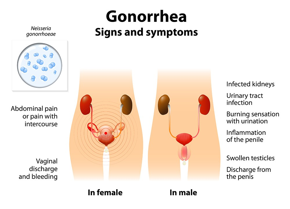Gonorrhea go away on its own