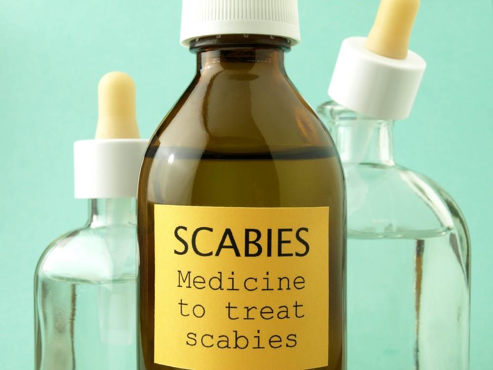 Scabies Causes Symptoms Treatment Pictures Amp Images