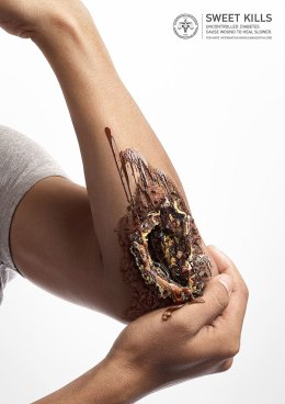 sweet-kills-sugar-harm-advertisement-uncontrolled-diabetes-wounds-6