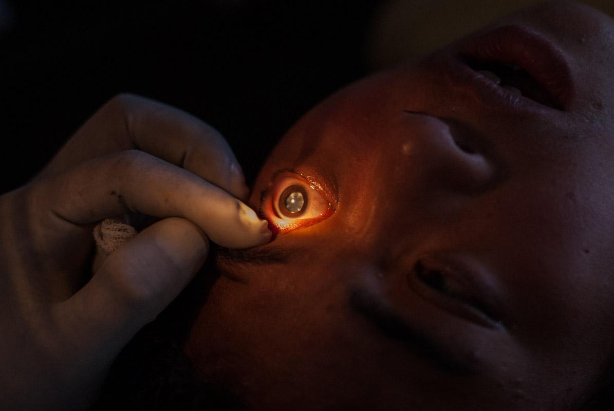 Nepal_Blindness_6931