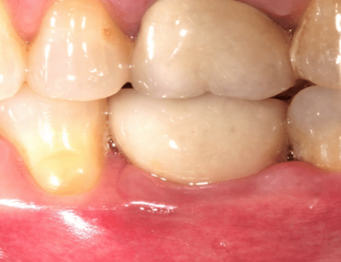 2 months after abutment, 8 days after cementation, patient presents with swelling and inflammation of the buccal gingiva