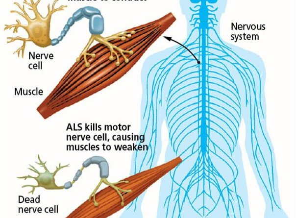 Stem Cell Therapy For Als India Stem Cell Medical