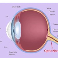 Find the Best Stem Cell Therapy for OPTIC NERVE ATROPHY in Delhi India-Viezec.