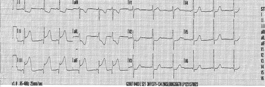 Inferoposterior myocardial infarction. St Emlyn's ECG Library stemlyns, ECG Library, #FOAMed, St. Emlyn's ECG Library. http://www.stemlynsblog.org/ecg-library/