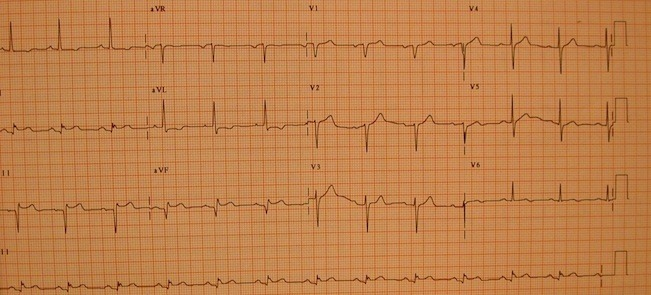 EKG in inferior myocardial infarction