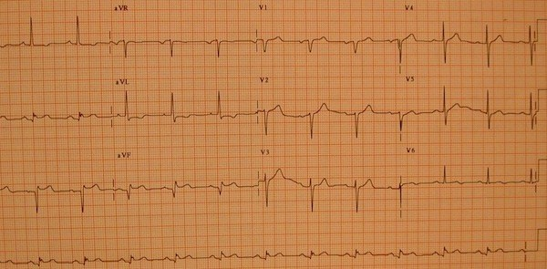 EKG in inferior myocardial infarction