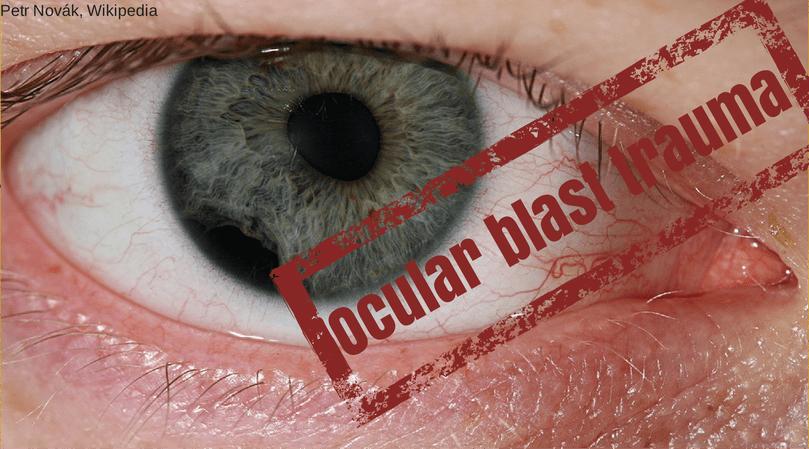 ocular blast trauma