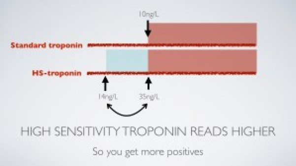 High sensitivity troponin T reads higher than the standard troponin T assay