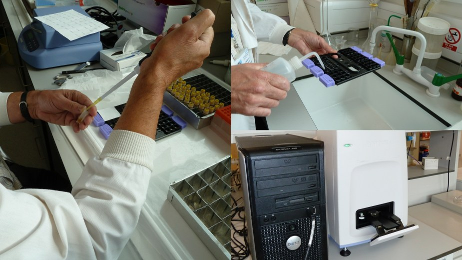 How to run an ELISA.  This is Phil Pemberton ran the ELISA assay for h-FABP.  Labour intensive!