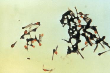 tetanus bacteriae