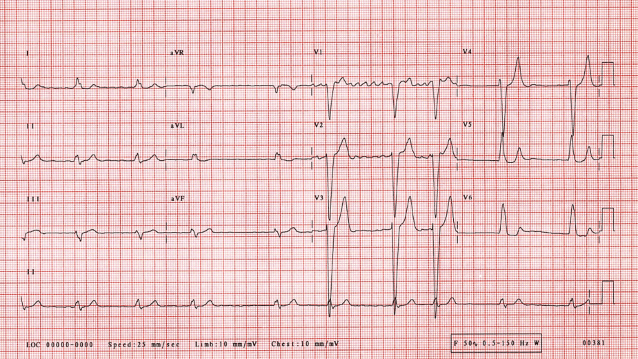 ECG: Atrial Fibrillation With Left Bundle Branch Block