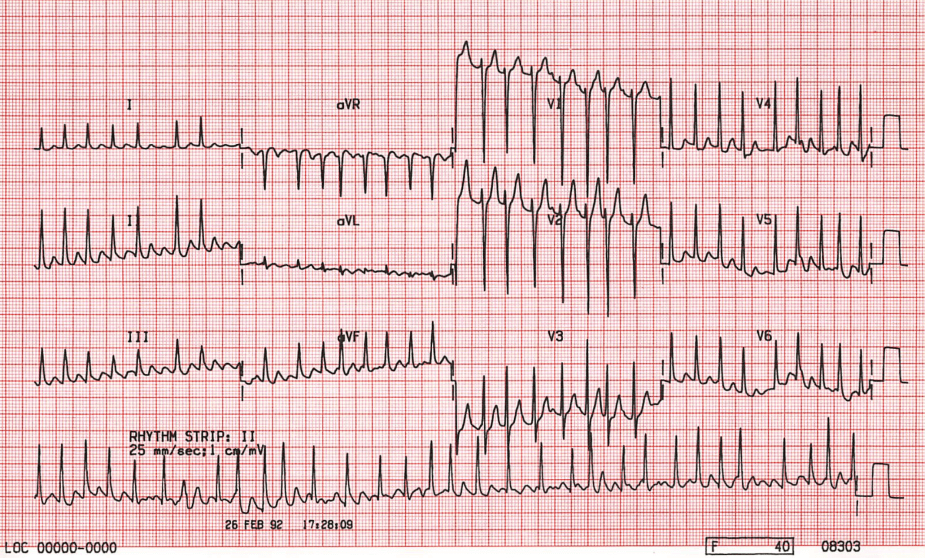 ECG Atrial Fibrillation with a Fast Ventricular Rate