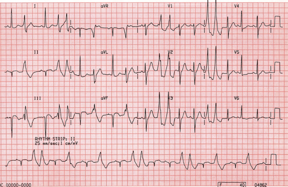B22.  Ventricular Ectopic Beats Following Myocardial Infarction