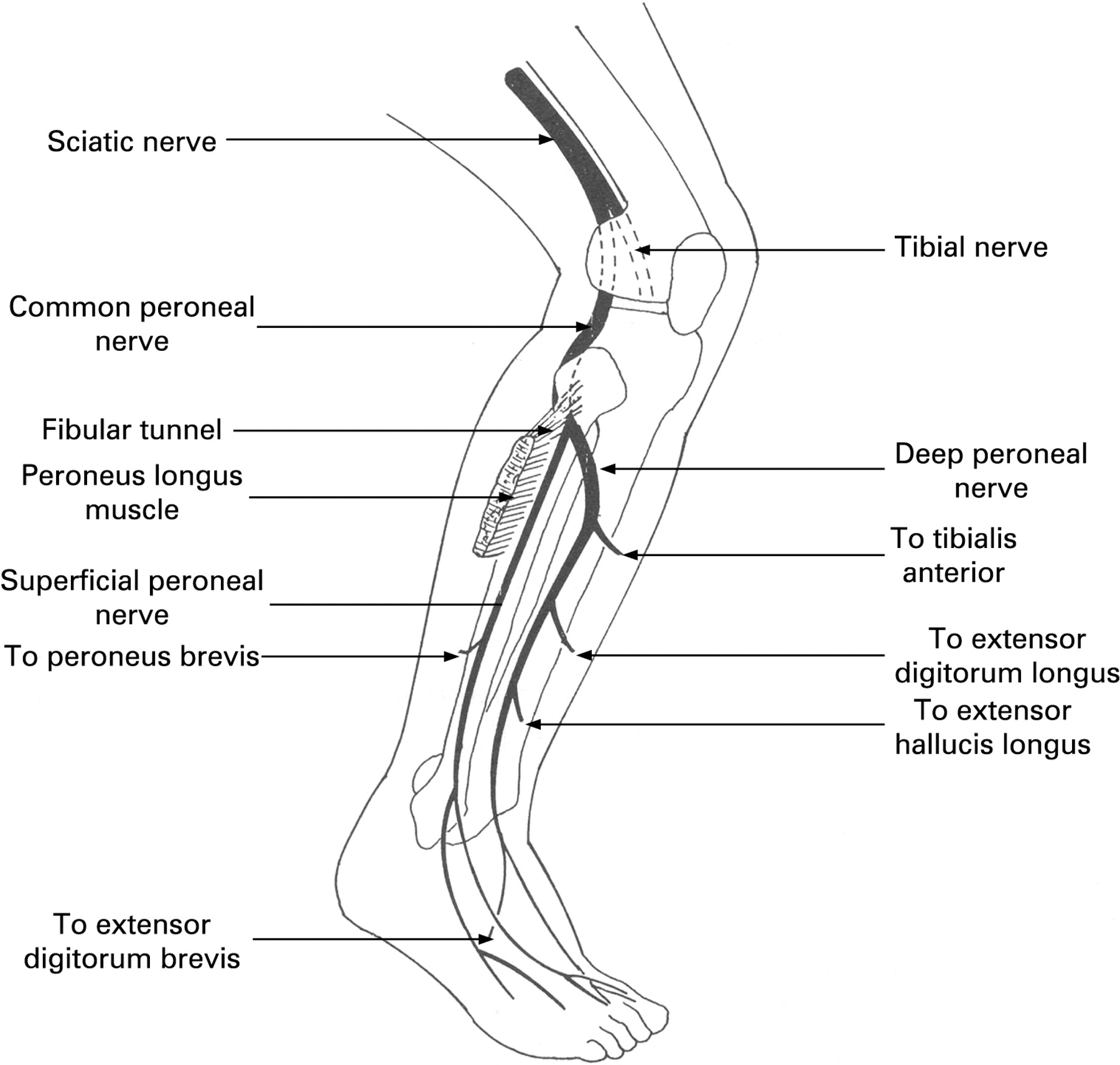 Common Peroneal Nerve