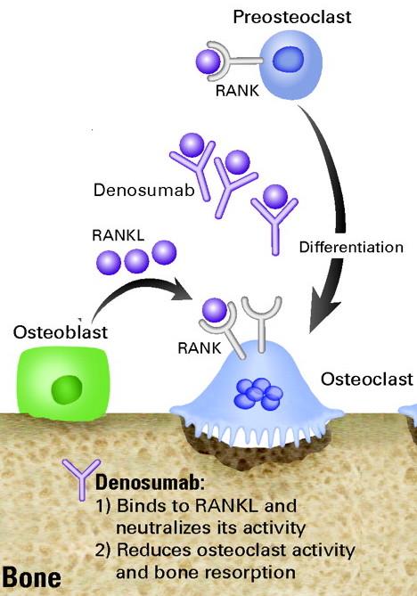 Denosumab Stepwards