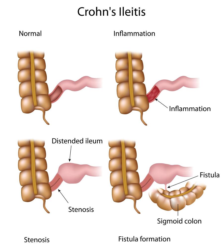 Crohn Disease Stepwards