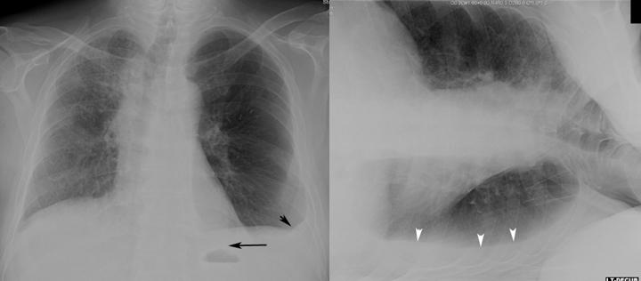 Small Pleural Effusion Cxr