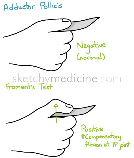 Ulnar Nerve  Stepwards. Shopping For A Home Loan Governors Races 2014. Apartment Liability Insurance. What Is Six Sigma Black Belt Certification Requirements. Apply To Nursing School Groove Toyota Service. Fire Science Online Degree Navy Social Worker. Computer Network Consultants. Home Insurance Monthly Object Removal Htc One. Whats The Best Phone Company