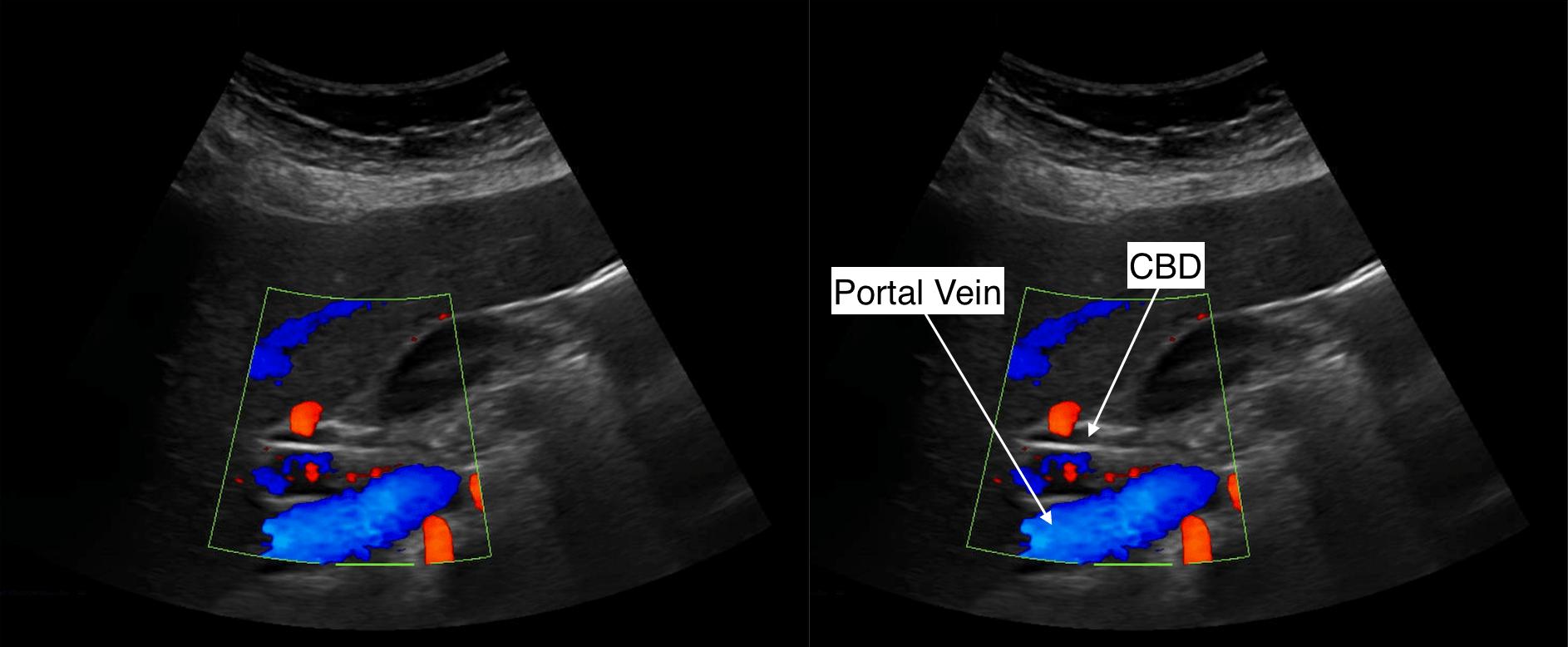 Protocoling Imaging Stu S Complete Abdominal Ultrasound