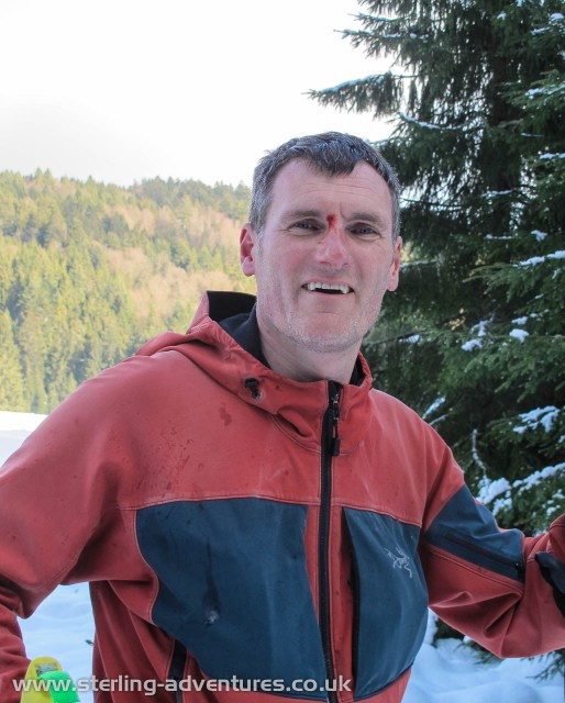 Who said cross country skiing isn't dangerous?!