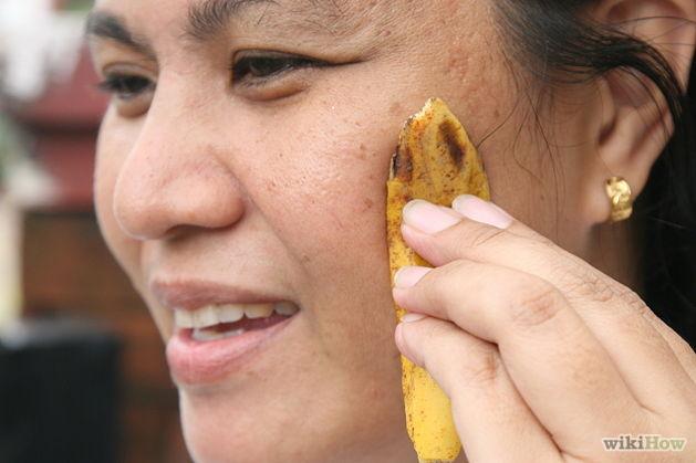 ELIMINARE L'ACNE DOPO LA PULIZIA DEL VISO  - Pulite la pelle con acqua tiepida, latte detergente con qualche goccia di limone e asciugate, quindi tamponate e strofinate sui punti in presenza di acne con l'interno della buccia di banana.