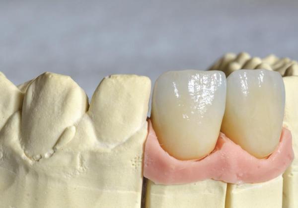 Металлокерамическая коронка: изготовление и установка на зуб