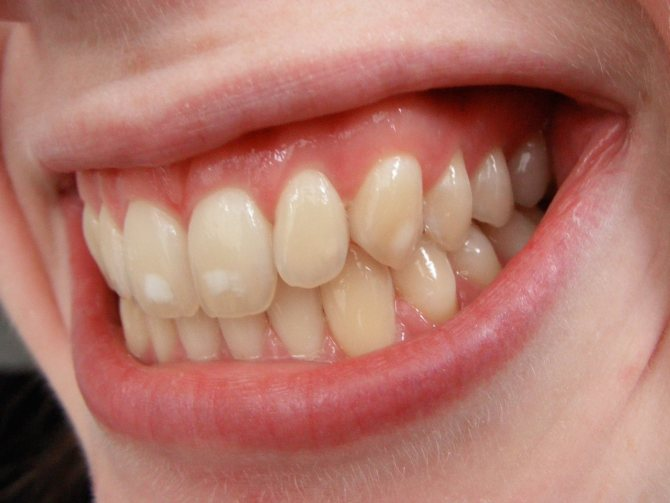 Почему появляются пятна на зубах?