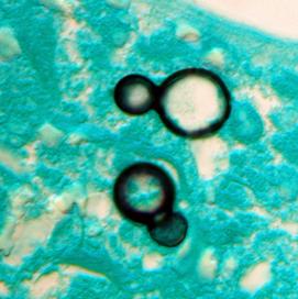 Blastomycosis