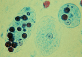 Ent Histolytica