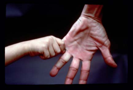 NIH hand hold