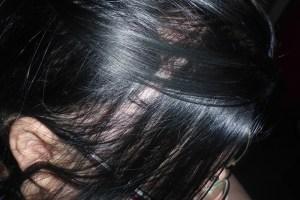 Haare Alopecia areata Haarausfall