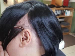 kahle Stellen Kopf ich Haarausfall Alopecia areata